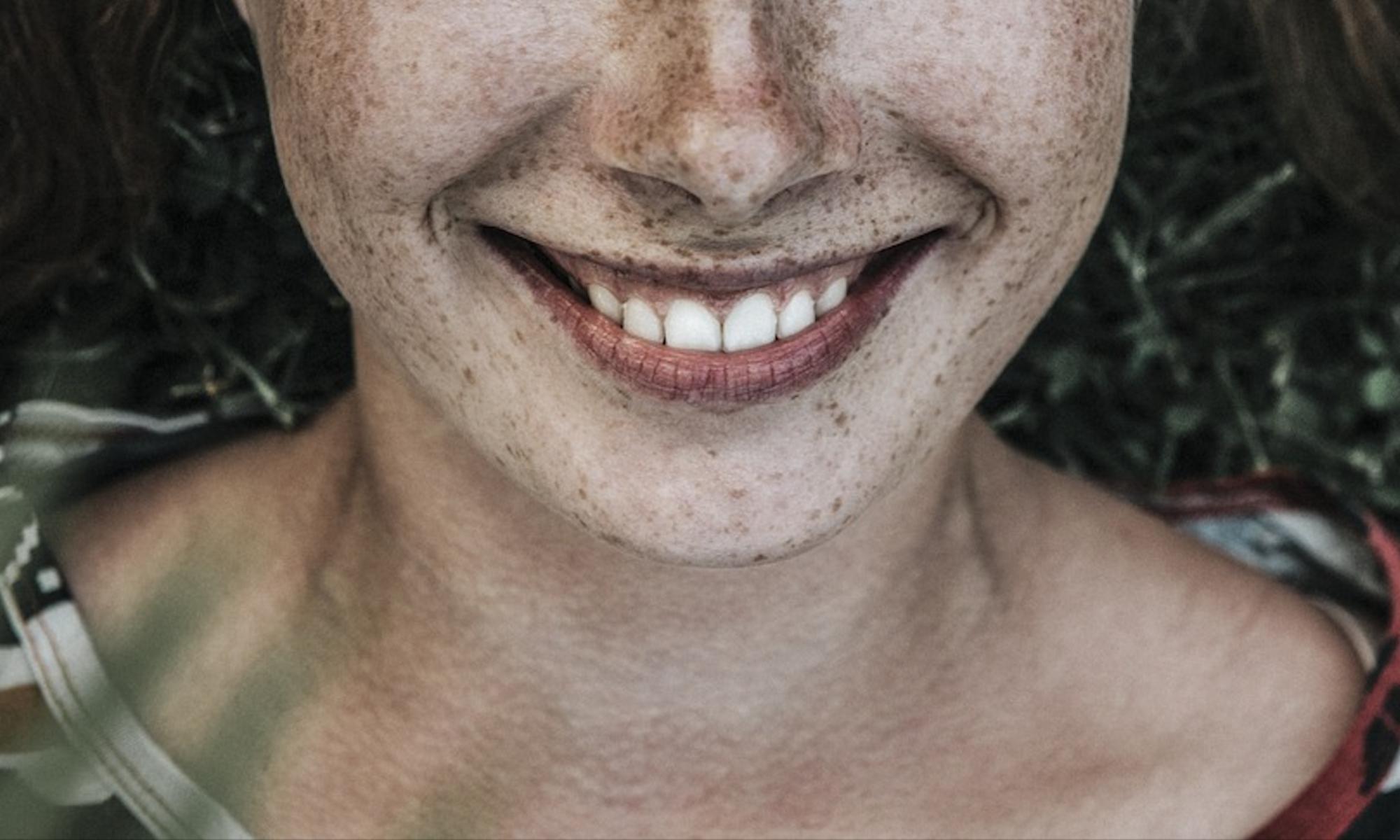 Tandcosmeticus De Zeeuwse Lach